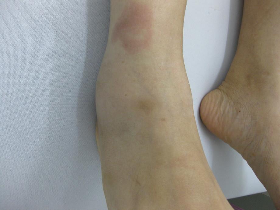 関節 骨折 果 足 外 足関節果部骨折、脛骨天蓋骨折のリハビリについて│ロコリハ